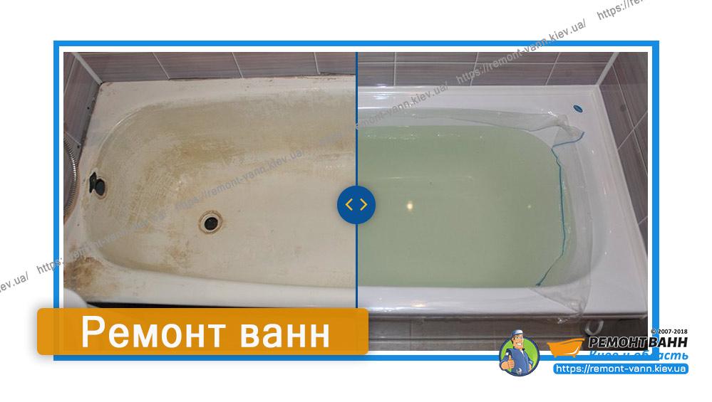 Ремонт ванн Киев